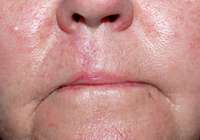 Mohs Nose Surgery after