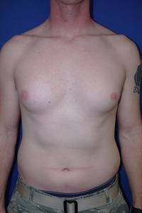 Breast Liposuction Before