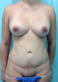 Before Tummy Tuck