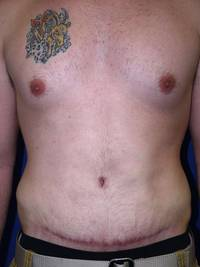 After Tummy Tuck After Weight Loss Surgery