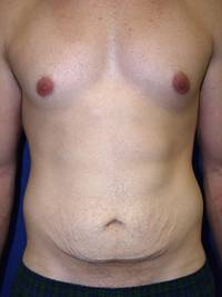 Before Tummy Tuck After Weight Loss Surgery