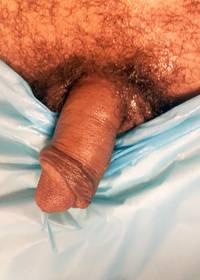 Penile Enhancement Before