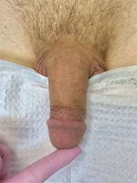 Male Enhancement with Fillers Before
