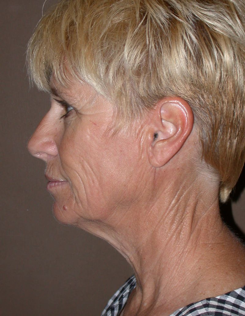 Before Face Lift with Lip Filler by Dr. Bermudez in San Francisco