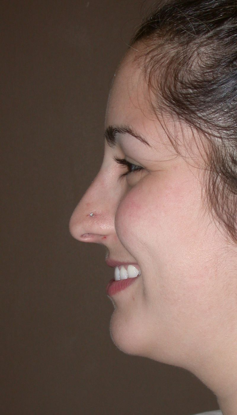 Before Nose Job Surgery by Dr. Bermudez in San Francisco