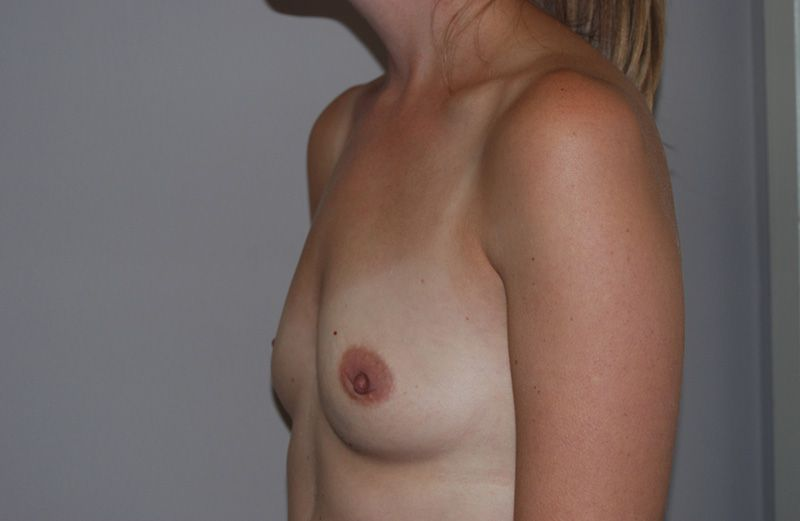 Before Breast Augmentation with Fat Grafting by Dr. Bermudez