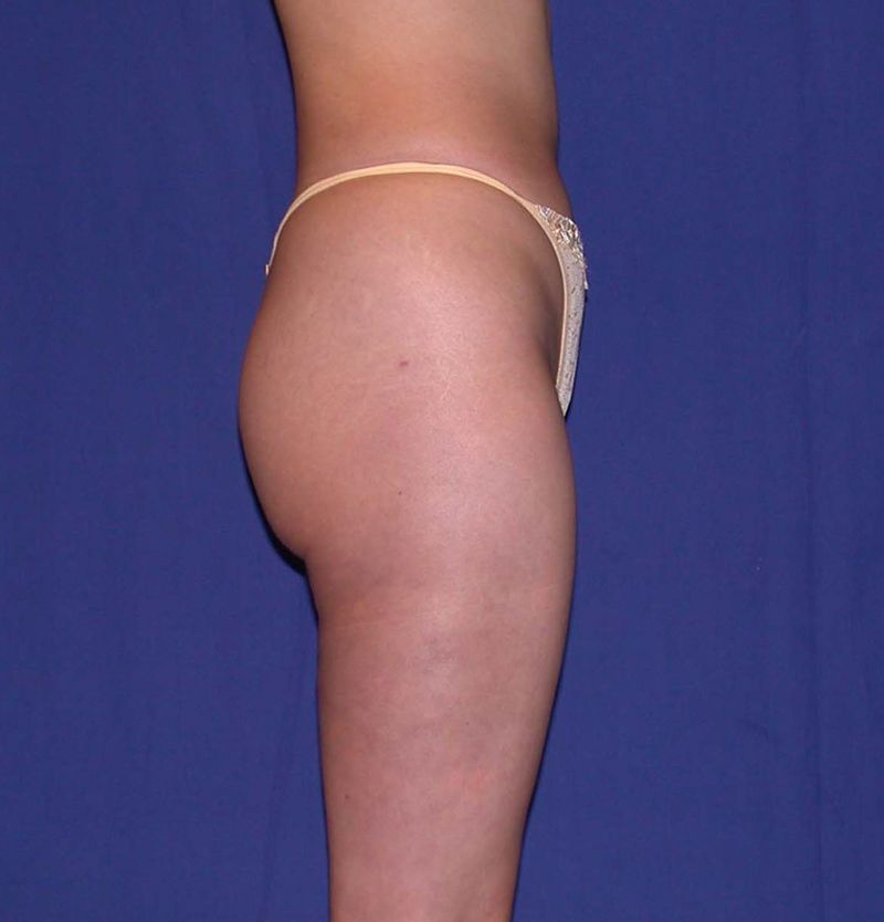 After Liposuction by Dr. Bermudez