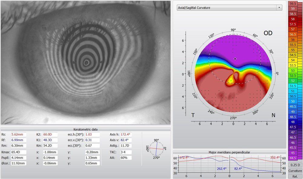 map of eye