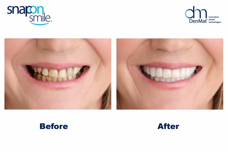 snap on smile before and after
