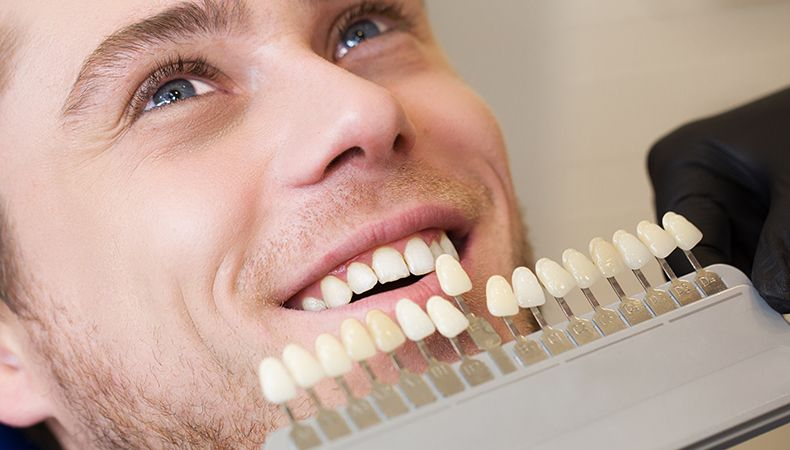man being treated with dental veneers