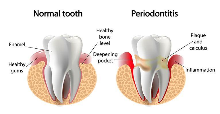 Periodontal Procedures Canyon Ridge Endodontics