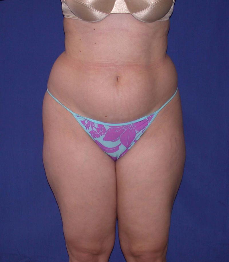Before Tummy Tuck Surgery by Dr. Bermudez in San Francisco