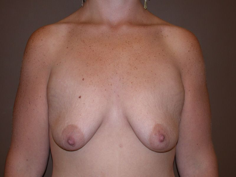 Beast Lift with Implants Before