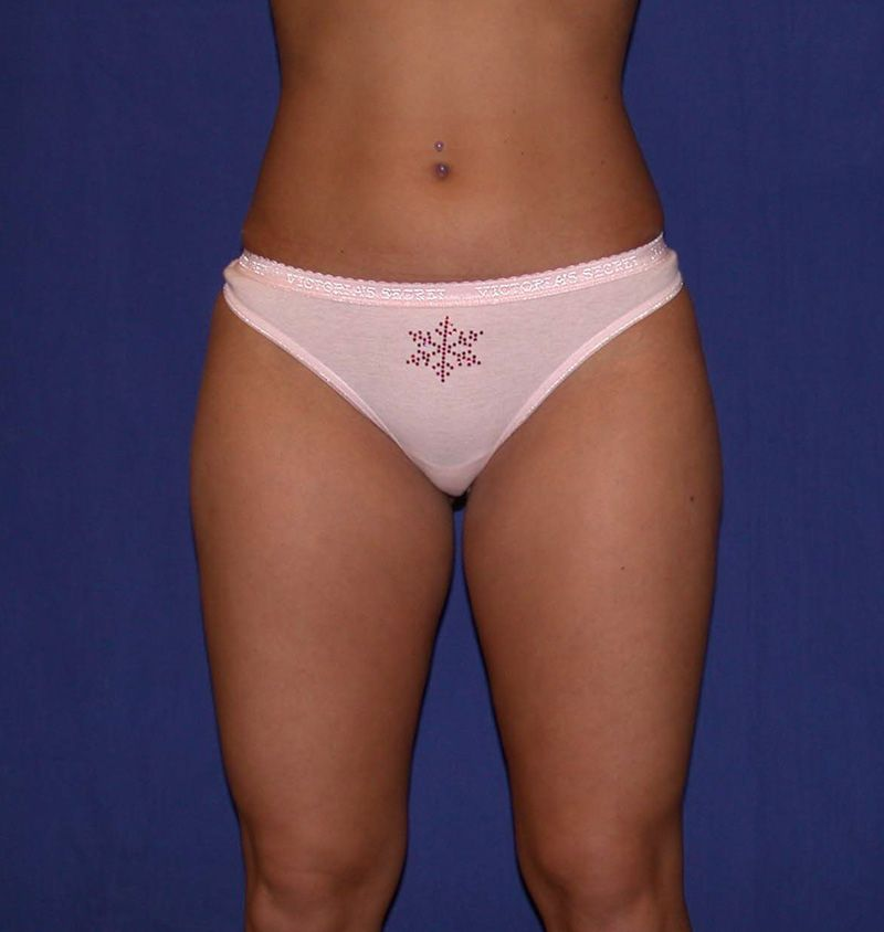 After Liposuction by Dr. Bermudez in San Francisco