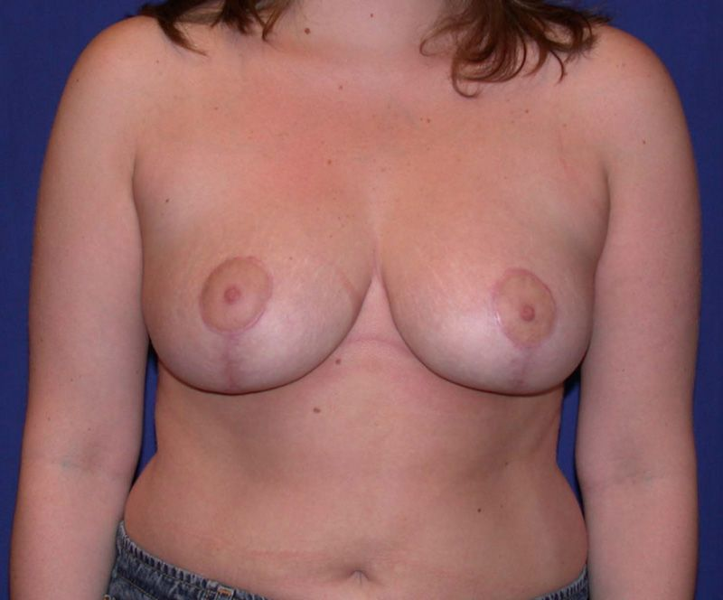 After Breast Lift by Dr. Bermudez