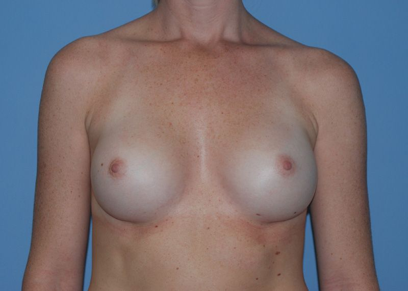 After Breast Augmentation with Breast Implants by Dr. Bermudez