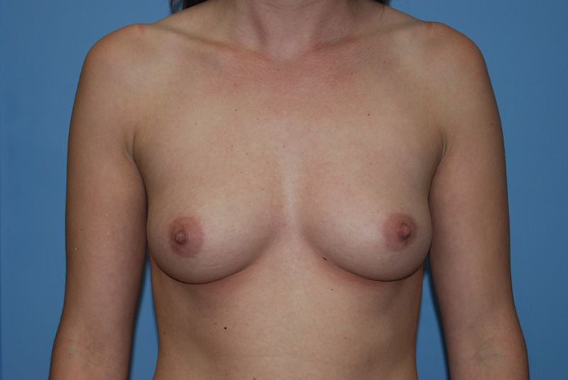 Before Breast Augmentation with Breast Implants by Dr. Bermudez