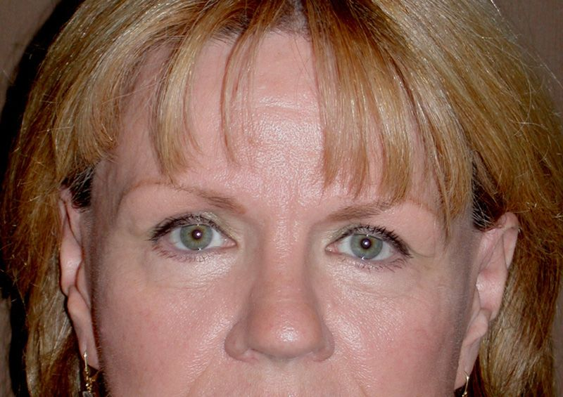 blepharoplasty after photos