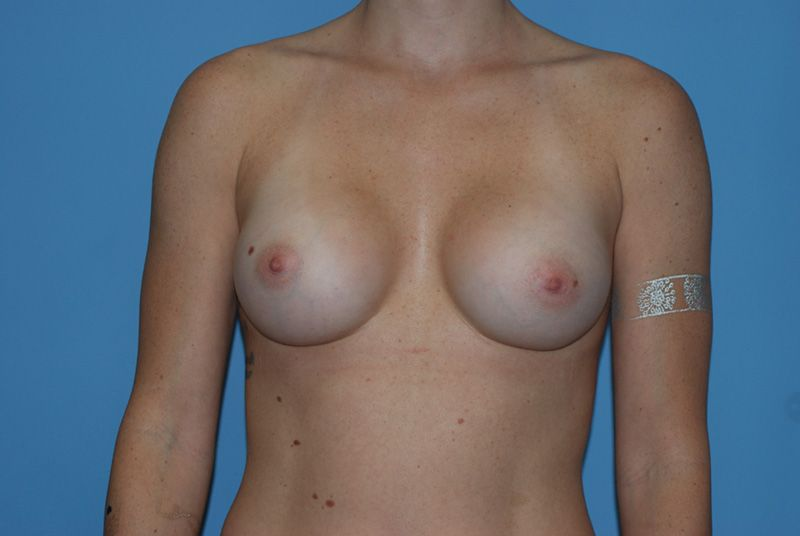 breast augmentation with breast implants after