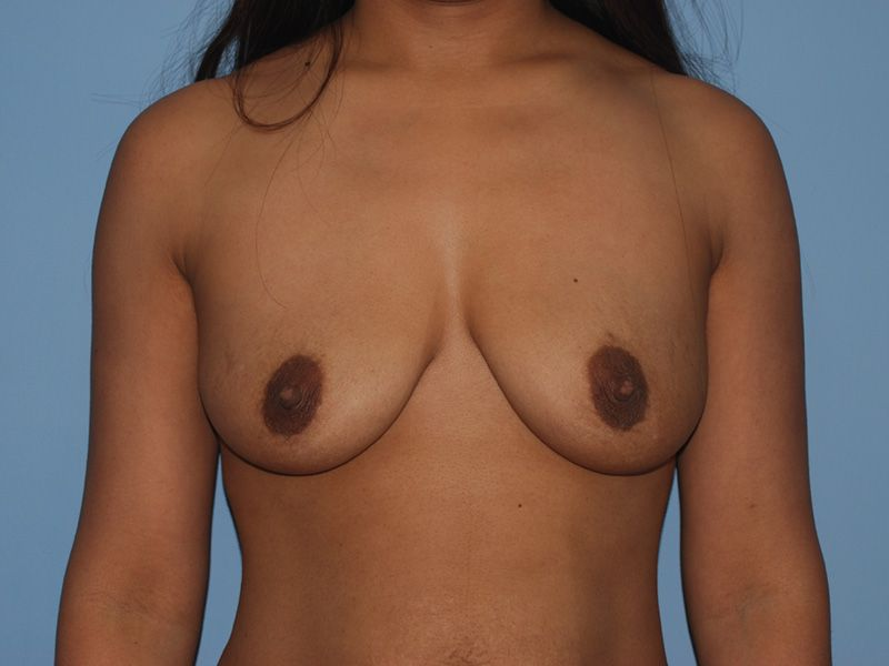 breast augmentation with breast implants before