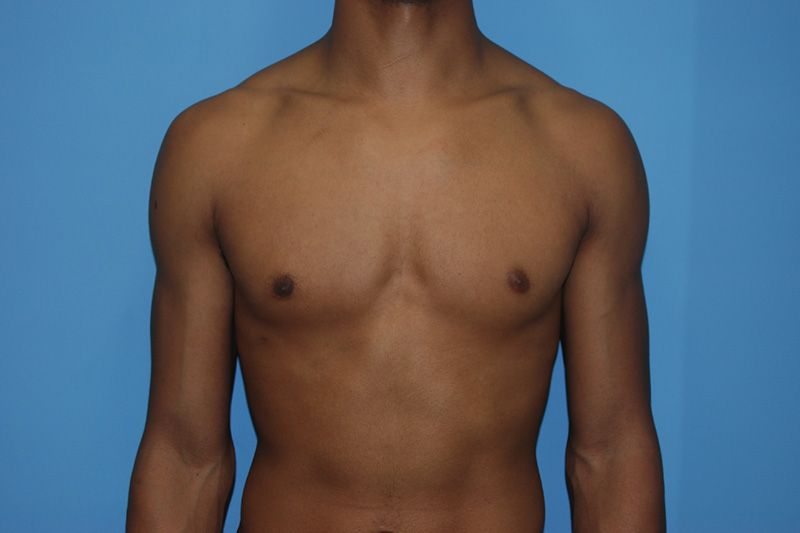 Male Breast Reduction - After