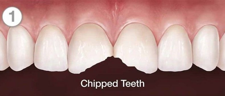 Chipped Tooth Image