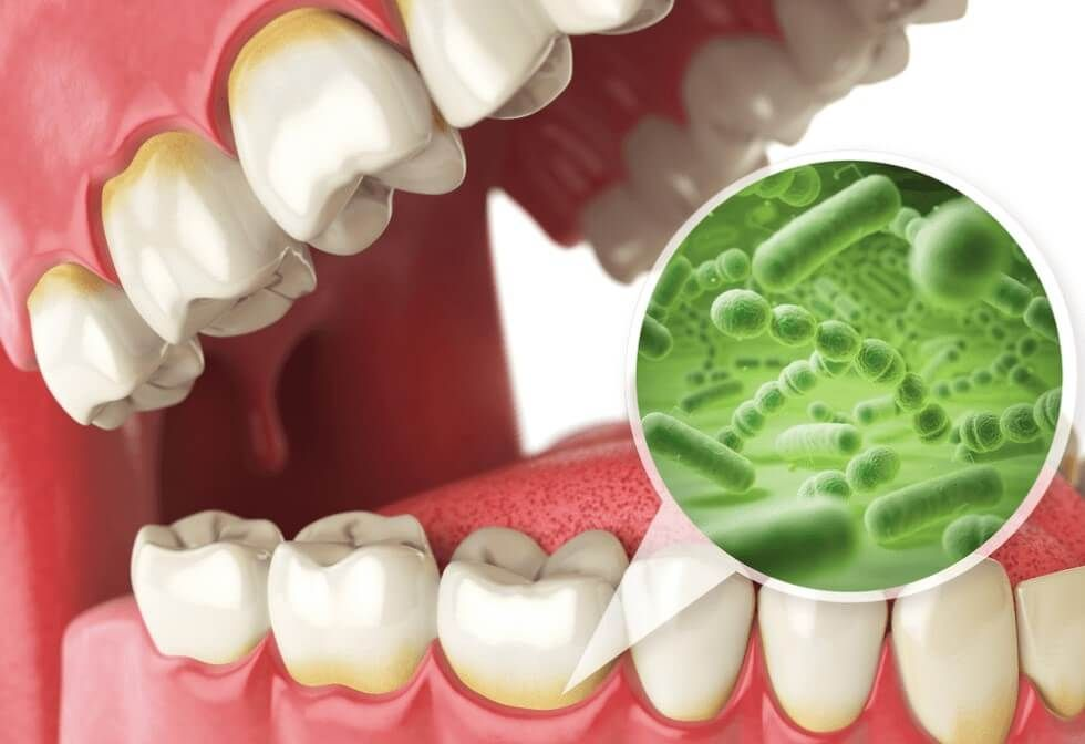 periodontal disease illustration