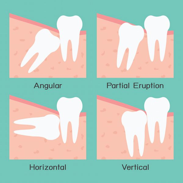 Wisdom Teeth Removal Cost At Keem Smile Dentistry