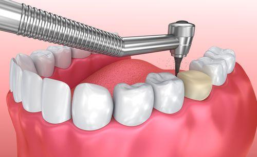 dental crown keem dentistry