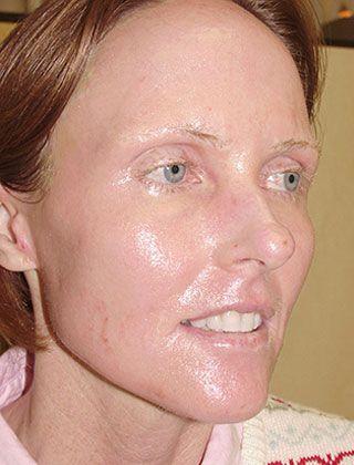 laser resurfacing face