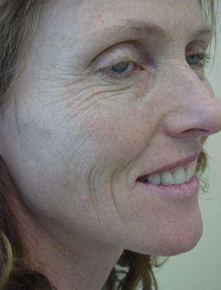 wrinkles face