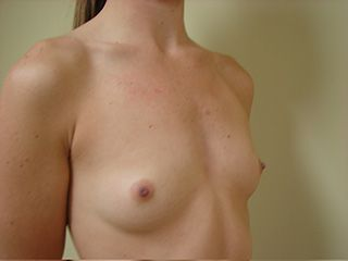 flat chested woman