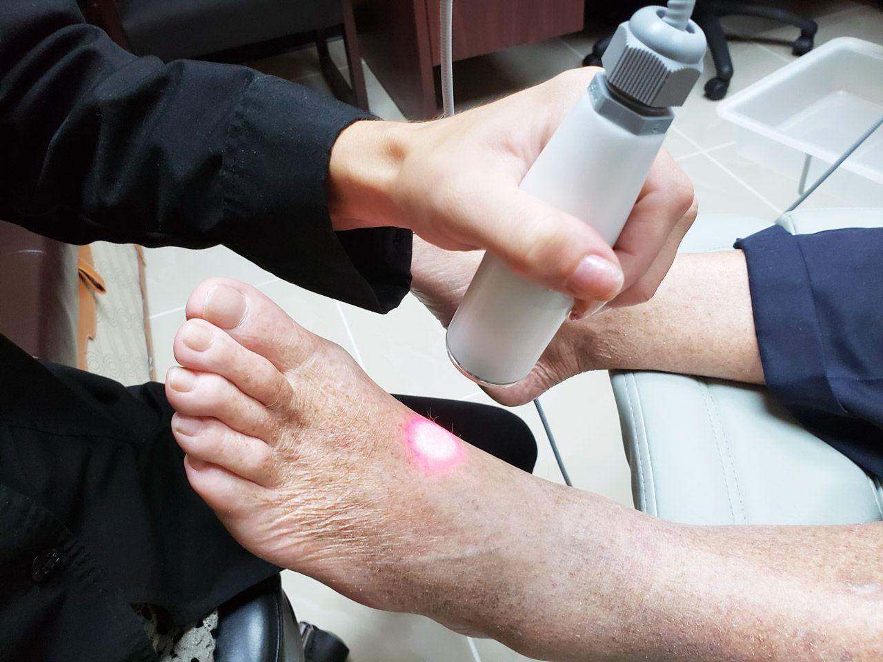 Foot Laser