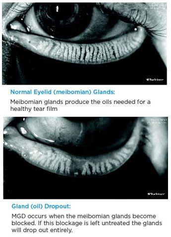 image of normal eyelid