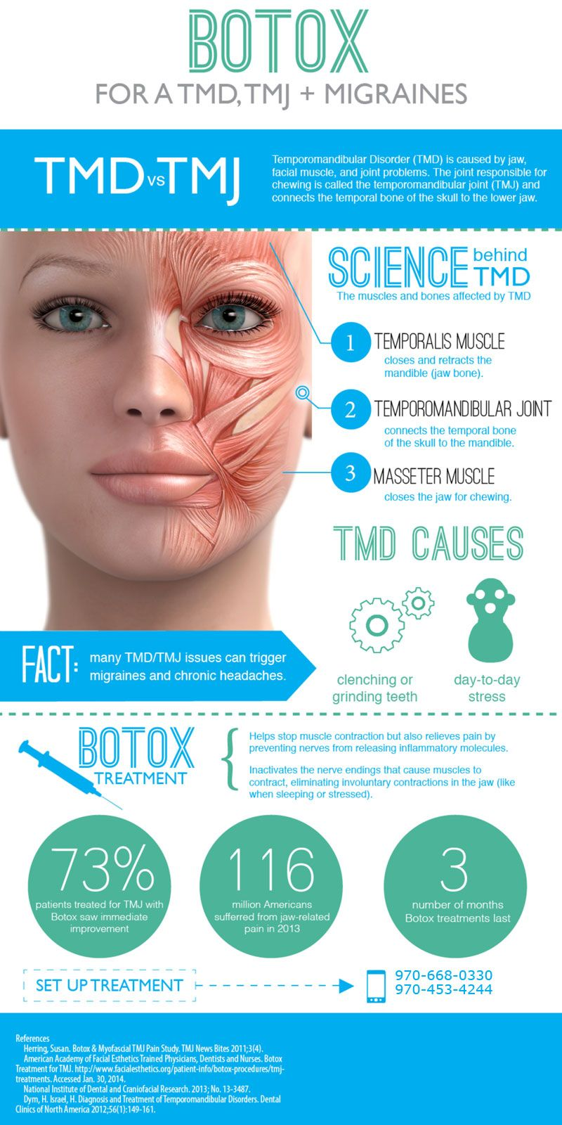 Botox for TMD