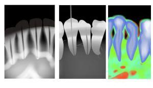 digital x rays
