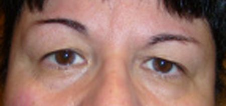 Before eyelid surgery