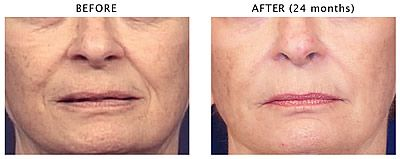 Before After cosmetic fillers