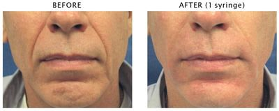 Before and after cosmetic fillers