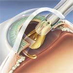 Insertion of lens implant into eye.