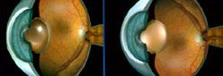 cloudy cataract lens
