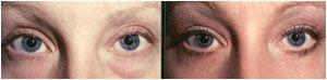lower lid eye surgery