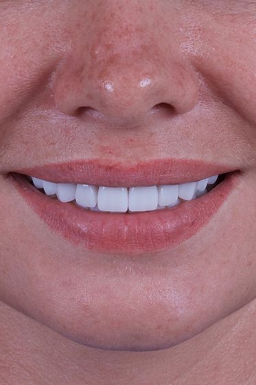 woman wearing porcelain veneers