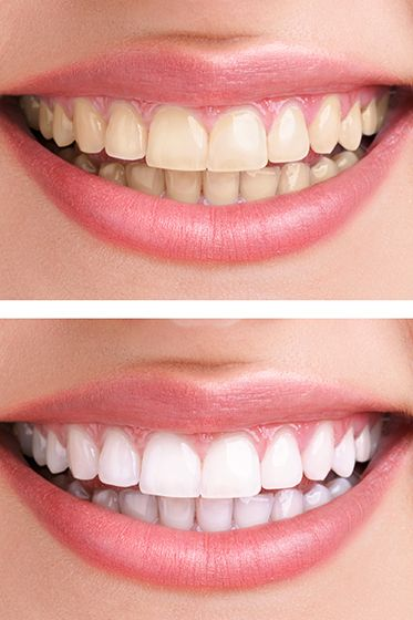 teeth bleaching