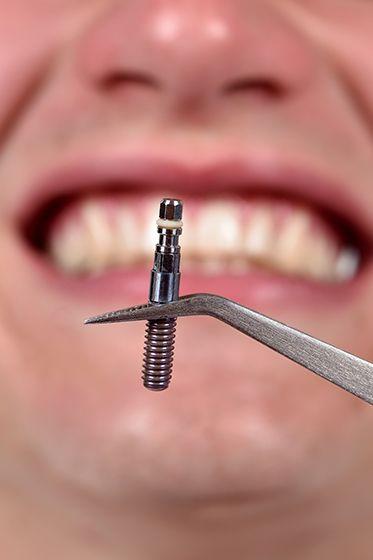 man wearing dental implants