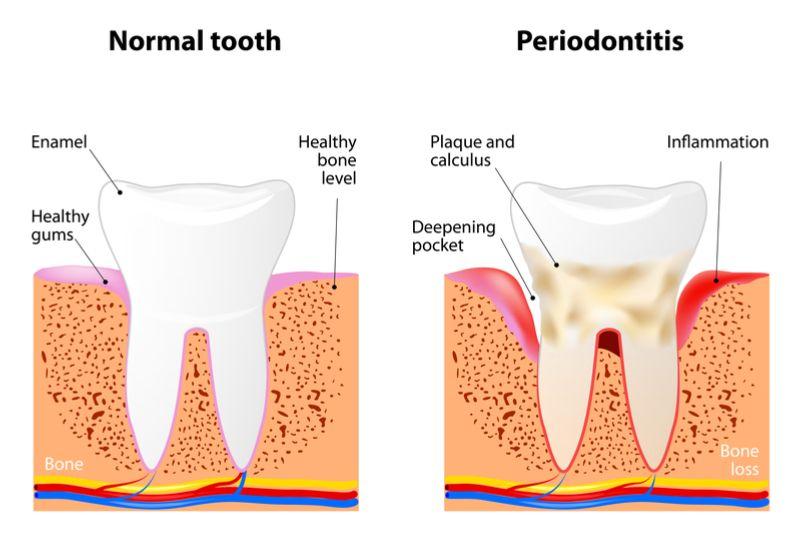 3d scan dental technology
