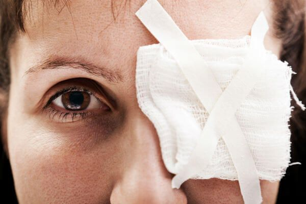 Our Orlando workers compensation attorneys list seven facts to know about eye injuries at work.
