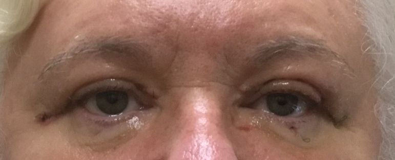 after eye treatment