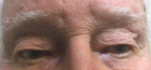 before eye treatment