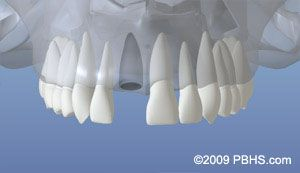 Implant Placement - Tooth Loss